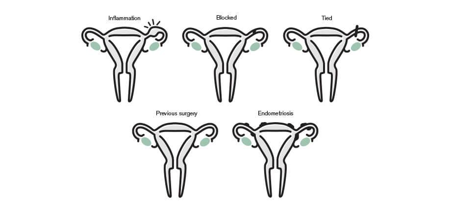 Genea blocked fallopian tubes