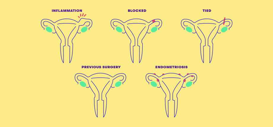 Fertility Issues - Blocked Fallopian Tubes - Genea Australia